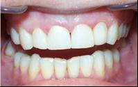 estetinis-dantu-plombavimas
