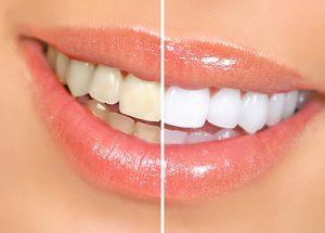 Kodėl ne visi mūsų dantys balti ir gražūs?