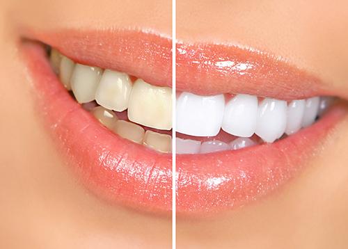 balti-dantys