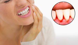 Kodėl kraujuoja dantenos?