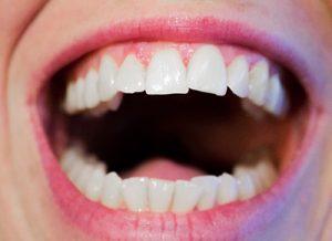 Kaip prižiūrėti dantis, kad jie negestų?