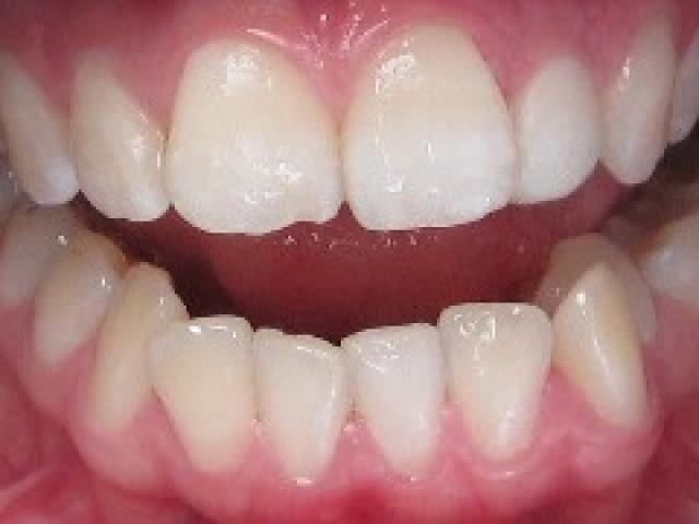 kreivu-dantu-tiesinimas-plombavimo-budu