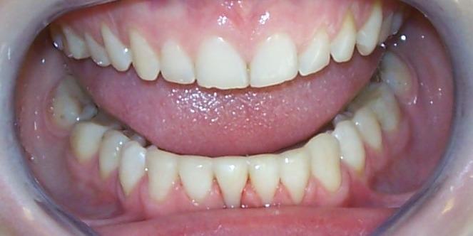 paslankiu-apatiniu-dantu-sutvirtinimas-ir-estetinis-plombavimas-2b