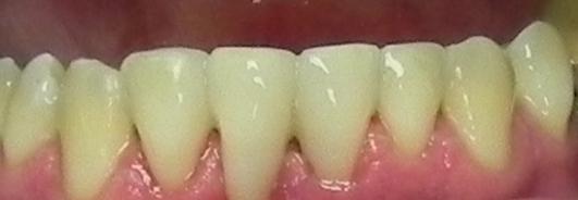 paslankiu-apatiniu-dantu-sutvirtinimas-ir-estetinis-plombavimas-3b