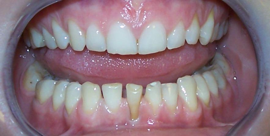 paslankiu-apatiniu-dantu-sutvirtinimas-ir-estetinis-plombavimas-2a
