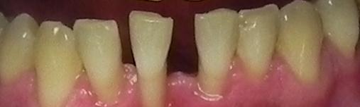 paslankiu-apatiniu-dantu-sutvirtinimas-ir-estetinis-plombavimas-3a