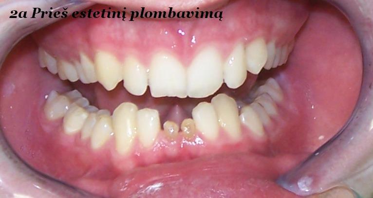 paslankiu-apatiniu-dantu-sutvirtinimas-ir-estetinis-plombavimas-a