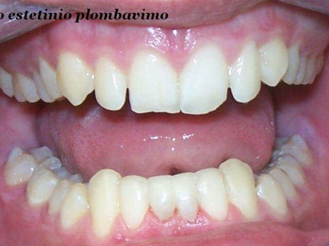 paslankiu-apatiniu-dantu-sutvirtinimas-ir-estetinis-plombavimas-b